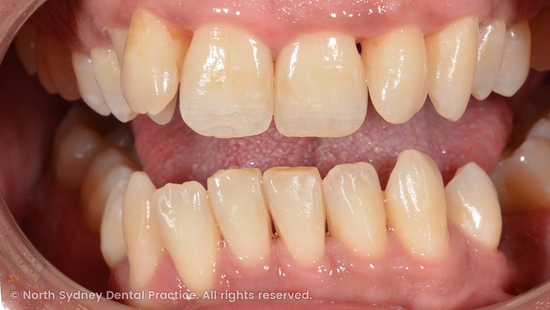 north-sydney-dental-practice-dr-hargreave-real-results-individual-condition-ross-invisalign-01