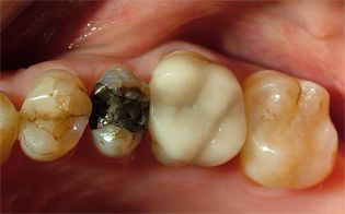 cerec-before