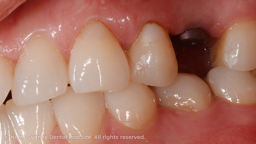 north-sydney-dental-practice-dr-hargreave-real-results-individual-condition-0001-implant-side-01