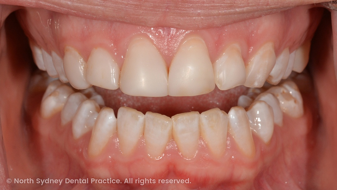 north-sydney-dental-practice-dr-hargreave-real-results-individual-condition-6022-dental-veneers-01