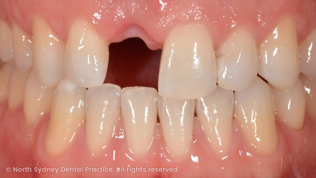 north-sydney-dental-practice-dr-hargreave-real-results-individual-condition-dan-dental-implants-01
