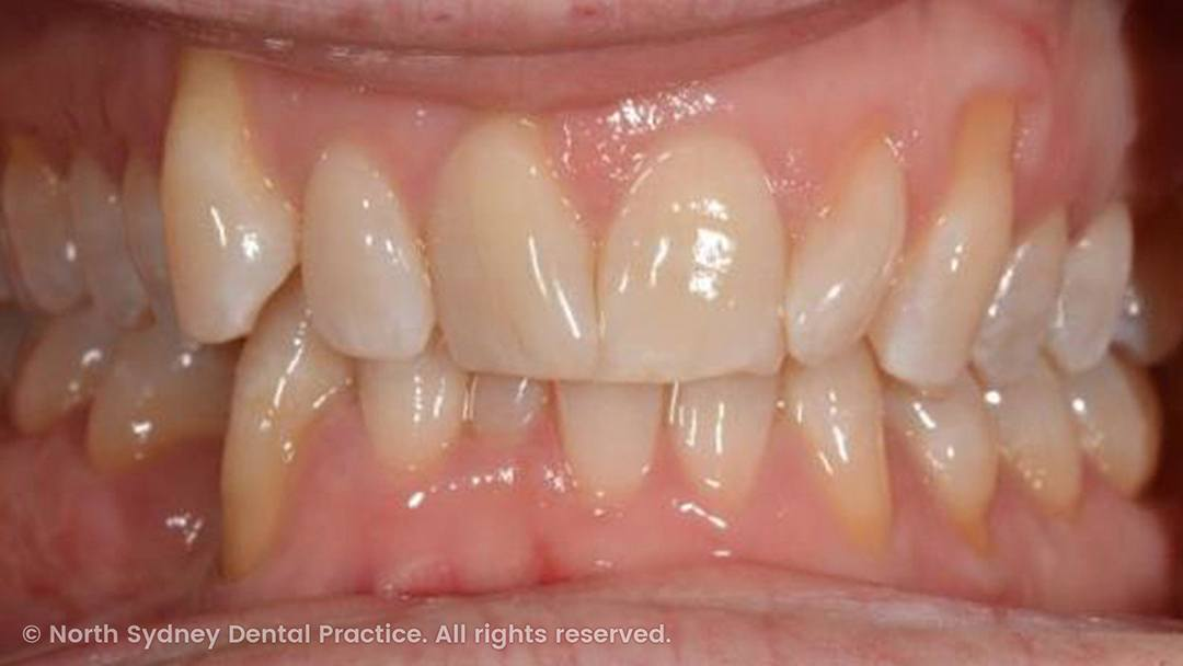 north-sydney-dental-practice-dr-hargreave-real-results-individual-condition-tahn-composites-01