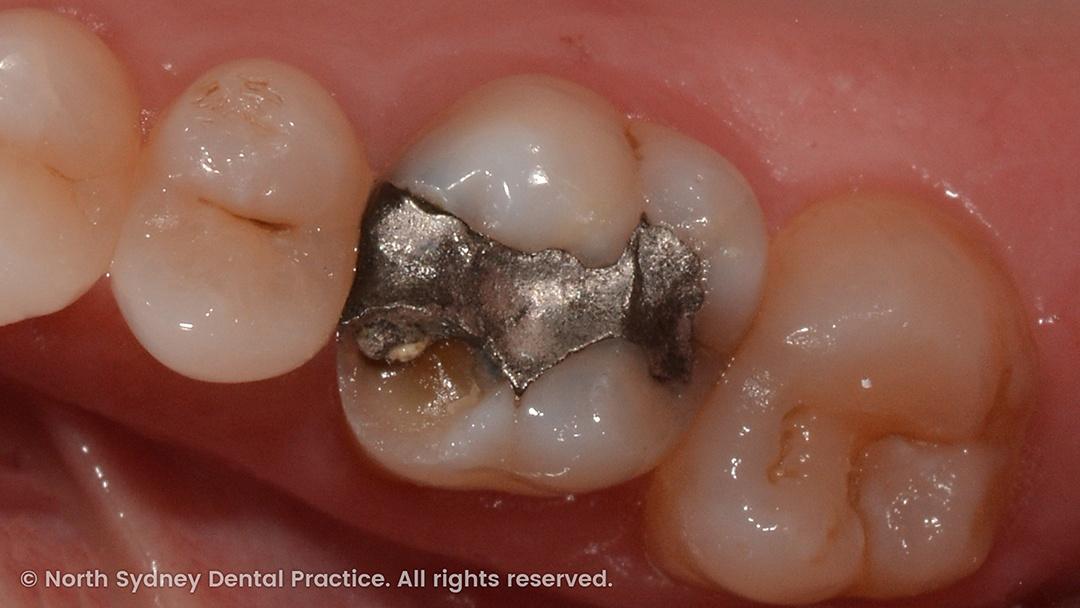 north-sydney-dental-practice-dr-hargreave-real-results-individual-condition-0003-dixon-cerec-01