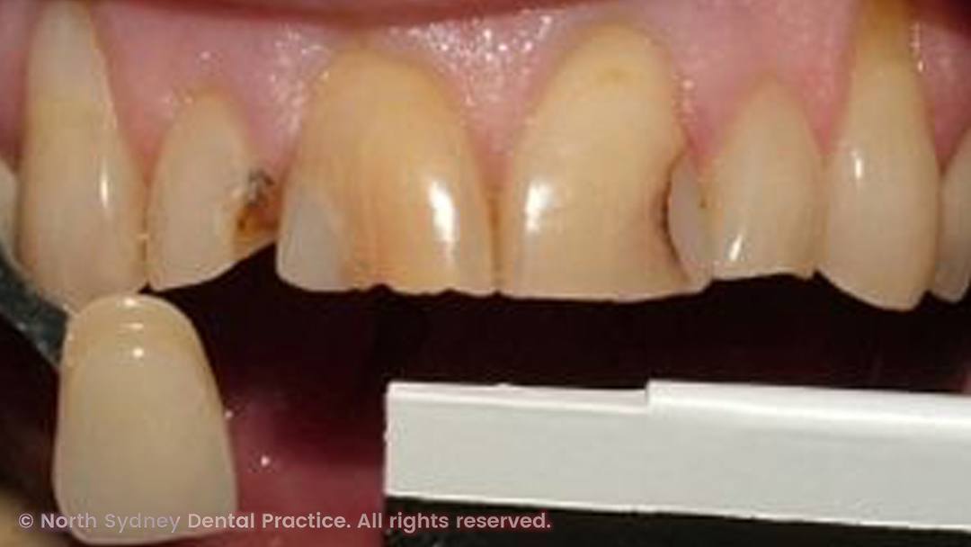 north-sydney-dental-practice-dental-crown-02