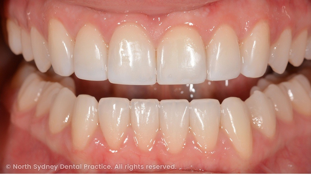 north-sydney-dental-practice-dr-hargreave-real-results-individual-condition-6990-composites-02