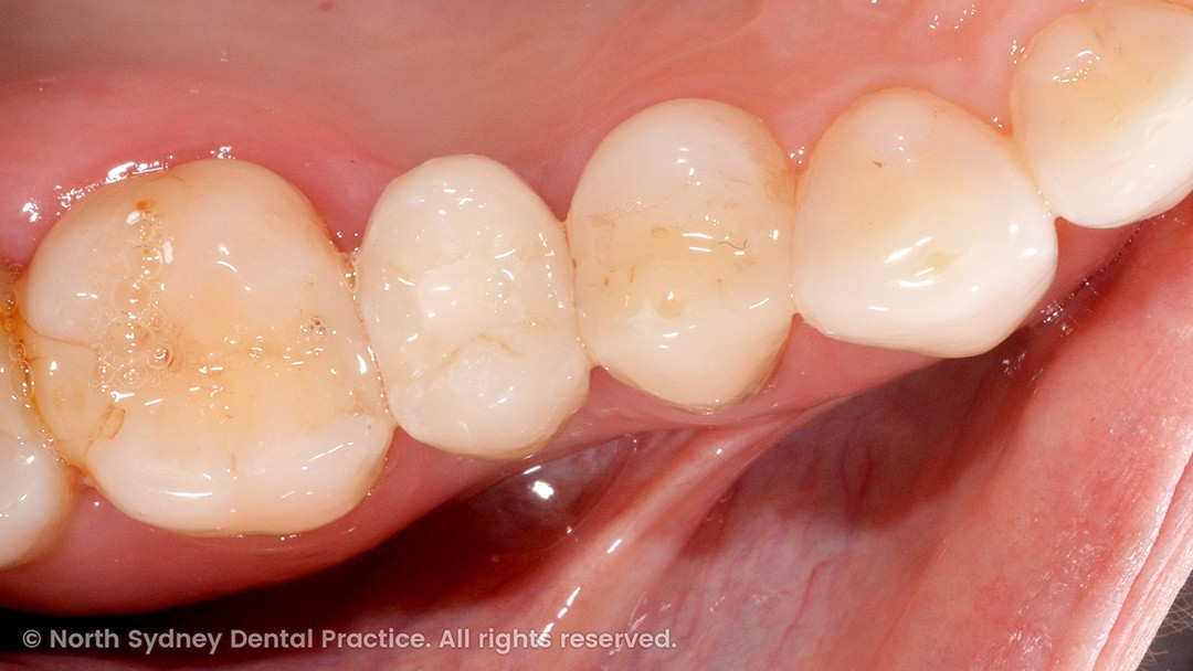 north-sydney-dental-practice-dr-hargreave-real-results-individual-condition-0001-implant-top-02