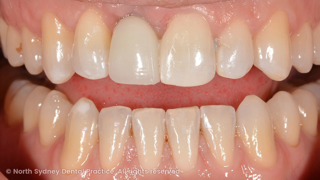 north-sydney-dental-practice-dr-hargreave-real-results-individual-condition-dan-dental-implants-02