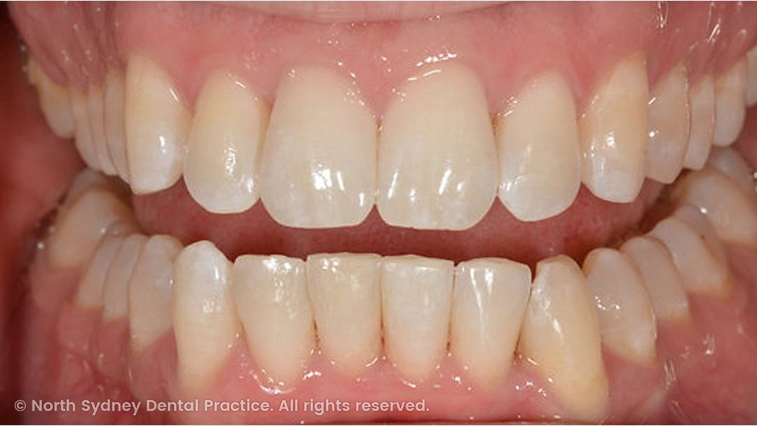 north-sydney-dental-practice-dr-hargreave-real-results-individual-condition-adf-invisalign-02