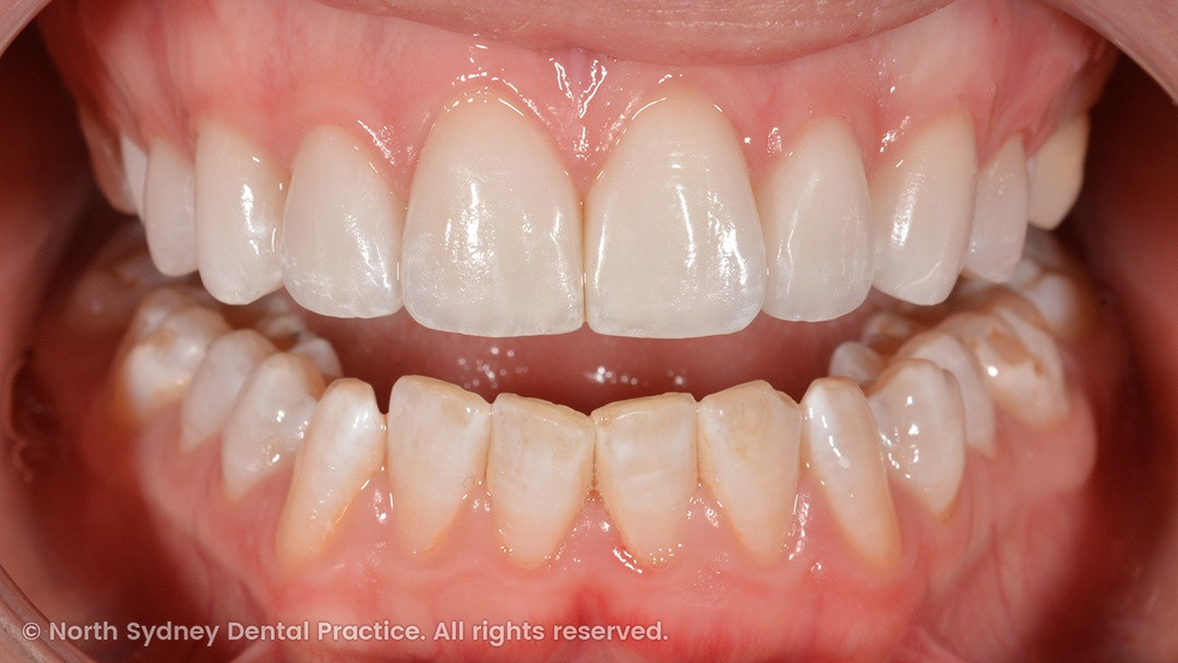 north-sydney-dental-practice-dr-hargreave-real-results-individual-condition-6022-dental-veneers-02