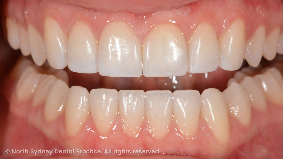 north-sydney-dental-practice-dr-hargreave-real-results-individual-condition-6990-composites-02x