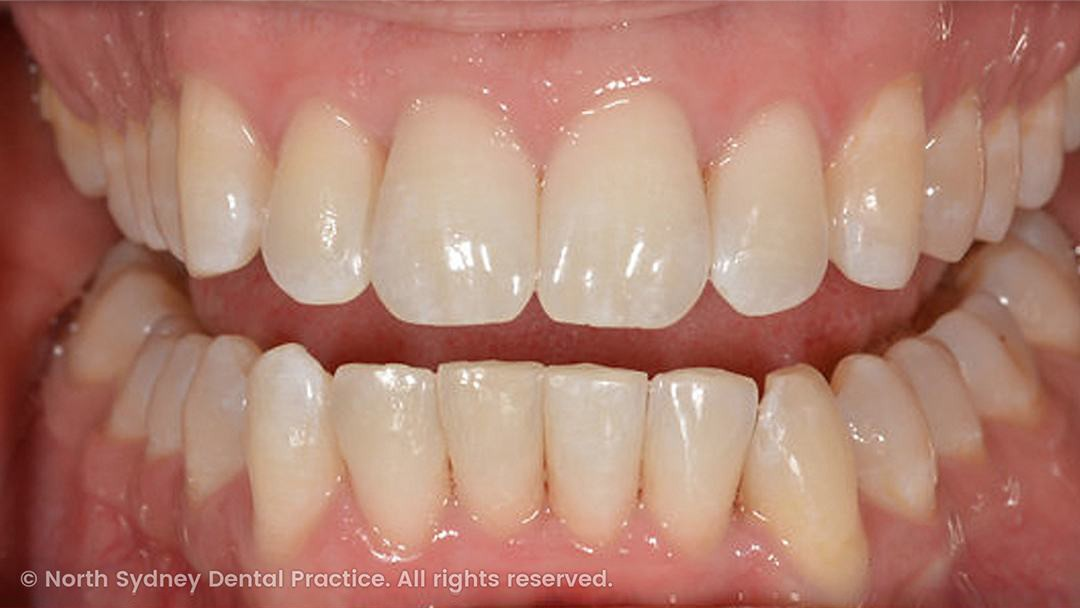 north-sydney-dental-practice-dr-hargreave-real-results-individual-condition-adf-invisalign-02x