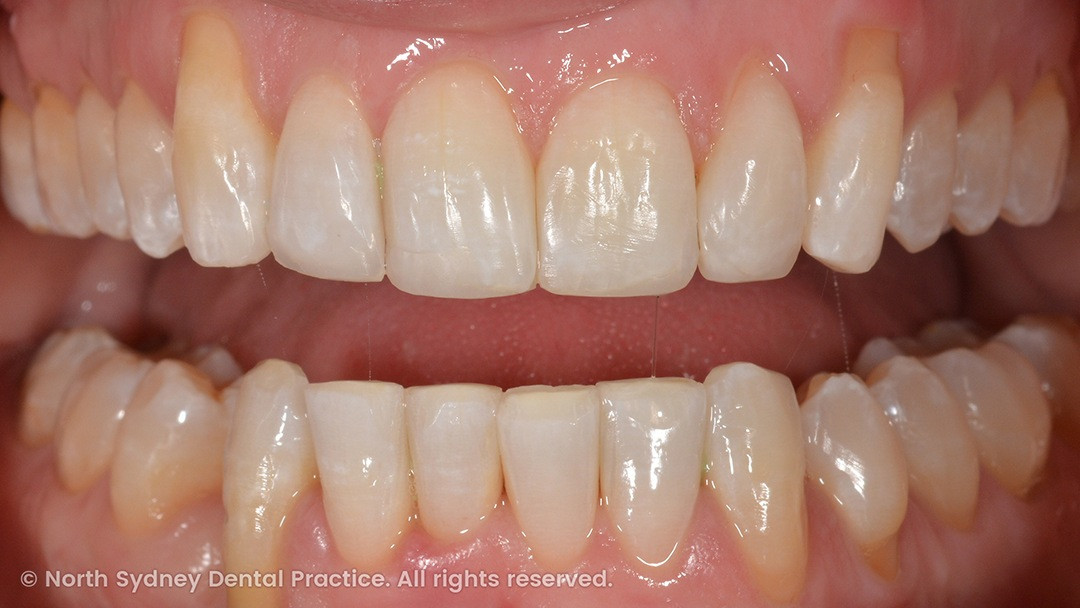 north-sydney-dental-practice-dr-hargreave-real-results-individual-condition-tahn-composites-02