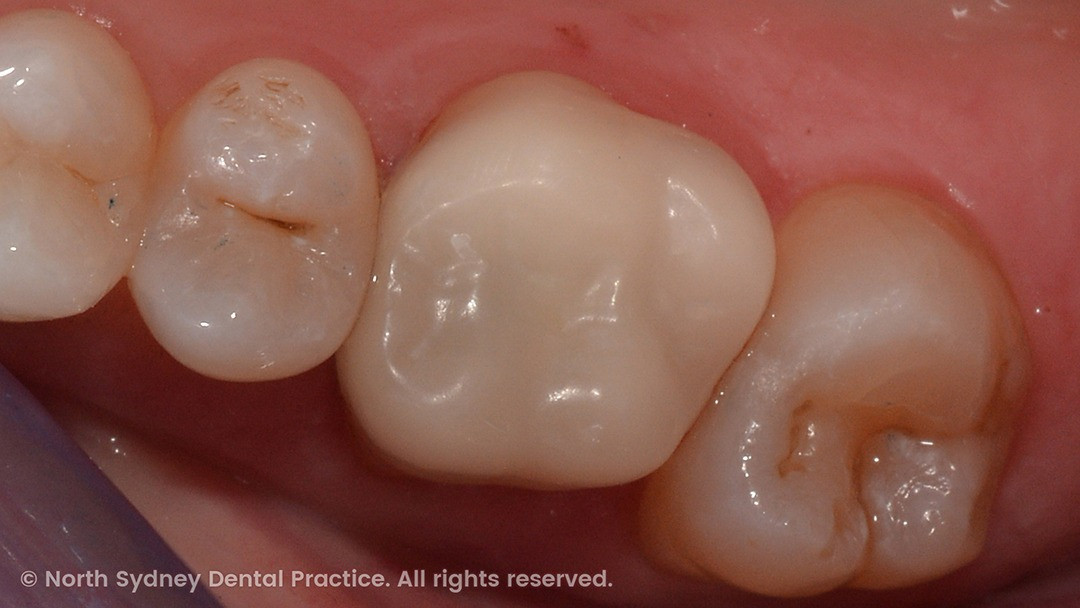 north-sydney-dental-practice-dr-hargreave-real-results-individual-condition-0003-dixon-cerec-02