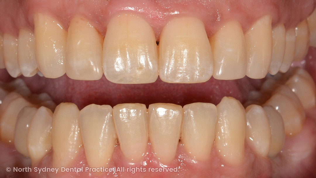 north-sydney-dental-practice-dr-hargreave-real-results-individual-condition-ross-invisalign-02