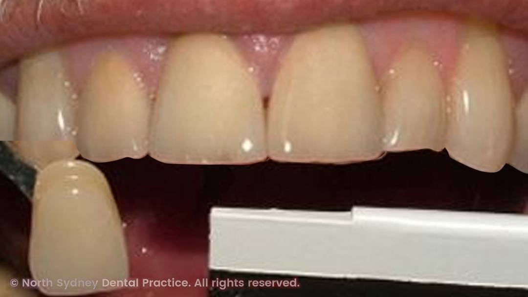 north-sydney-dental-practice-dental-crown-01